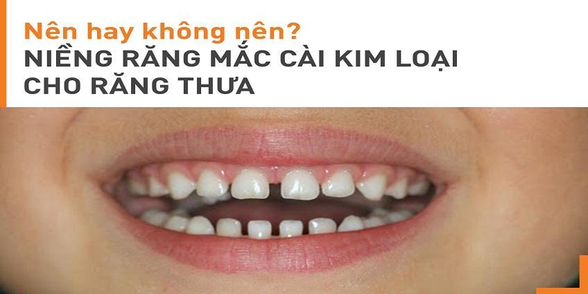 Niềng răng mắc cài kim loại cho răng thưa: Nên hay không?