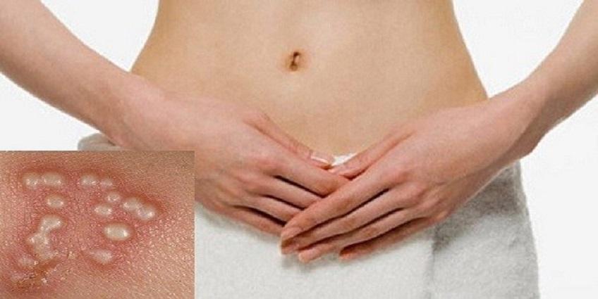 Cách nào phòng ngừa Herpes sinh dục tái phát?