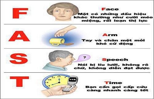 Cách nhận biết nhanh người bị đột quỵ