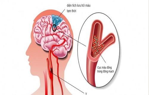 Thiếu máu não và rối loạn tiền đình có phải là một?